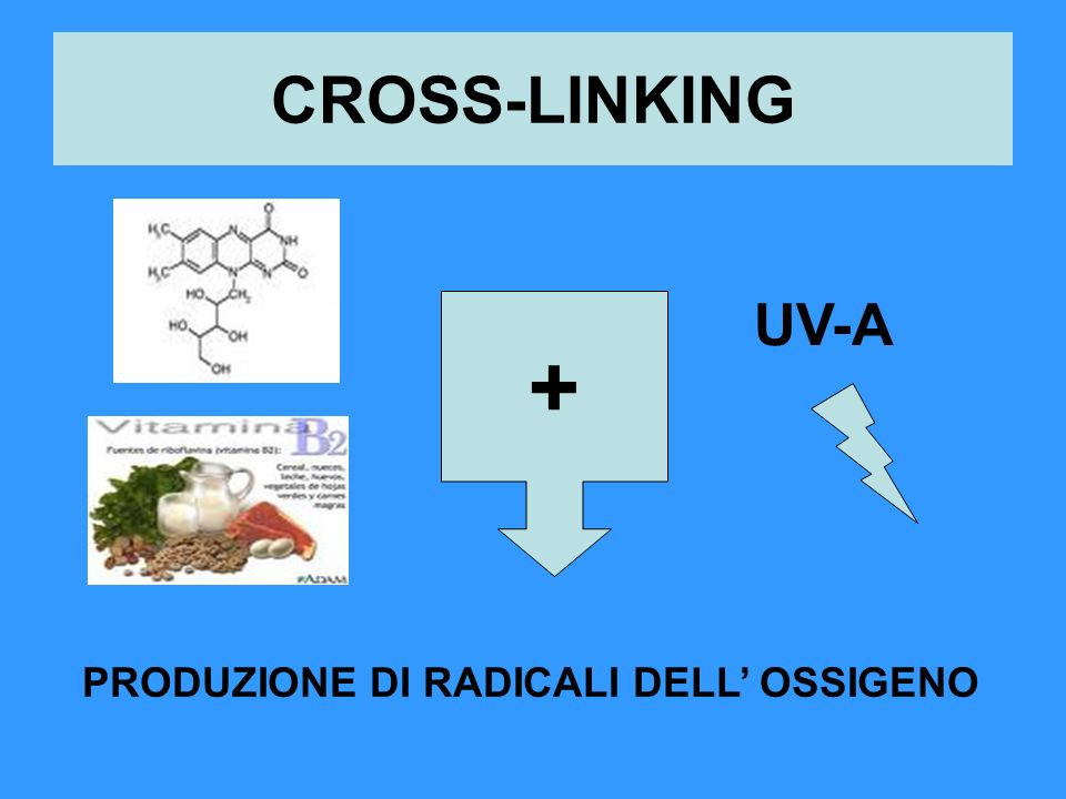 CROSS-LINKING UV-A + PRODUZIONE DI RADICALI DELL OSSIGENO