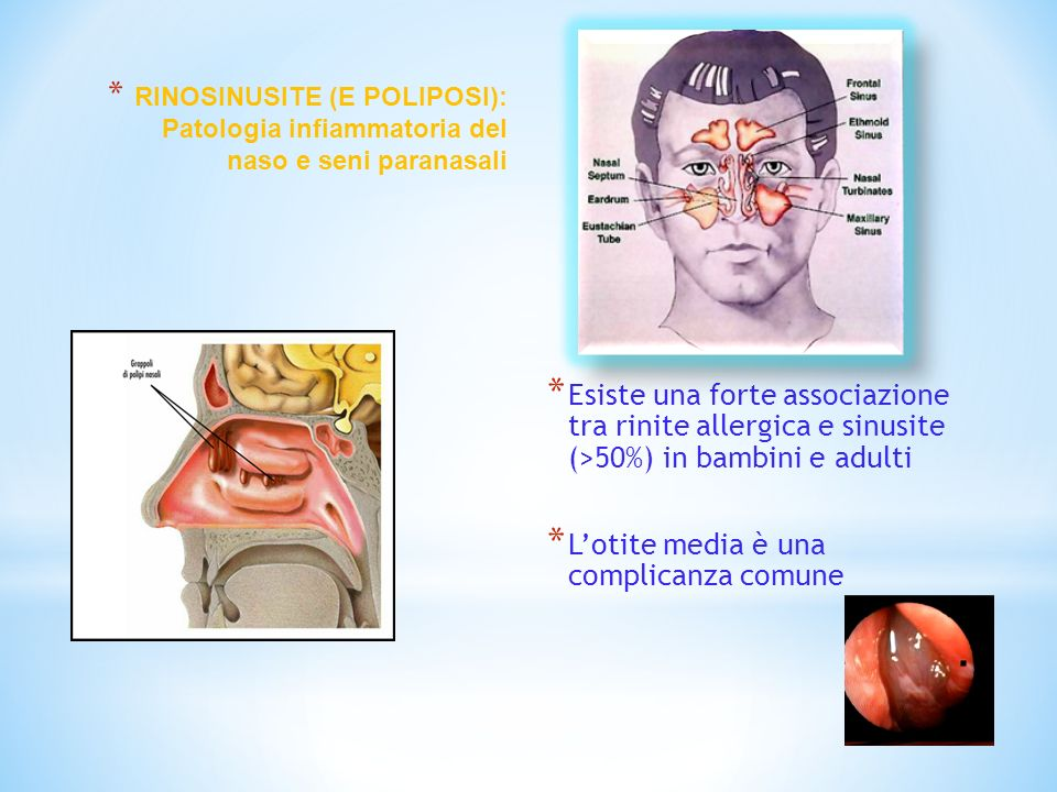 * Esiste una forte associazione tra rinite allergica e sinusite (>50%) in bambini e adulti * Lotite media è una complicanza comune