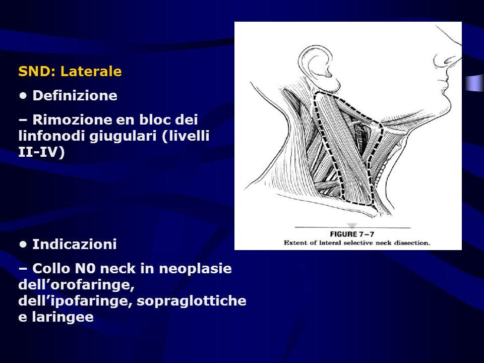 SND: Laterale Definizione – Rimozione en bloc dei linfonodi giugulari (livelli II-IV) Indicazioni – Collo N0 neck in neoplasie dellorofaringe, dellipo