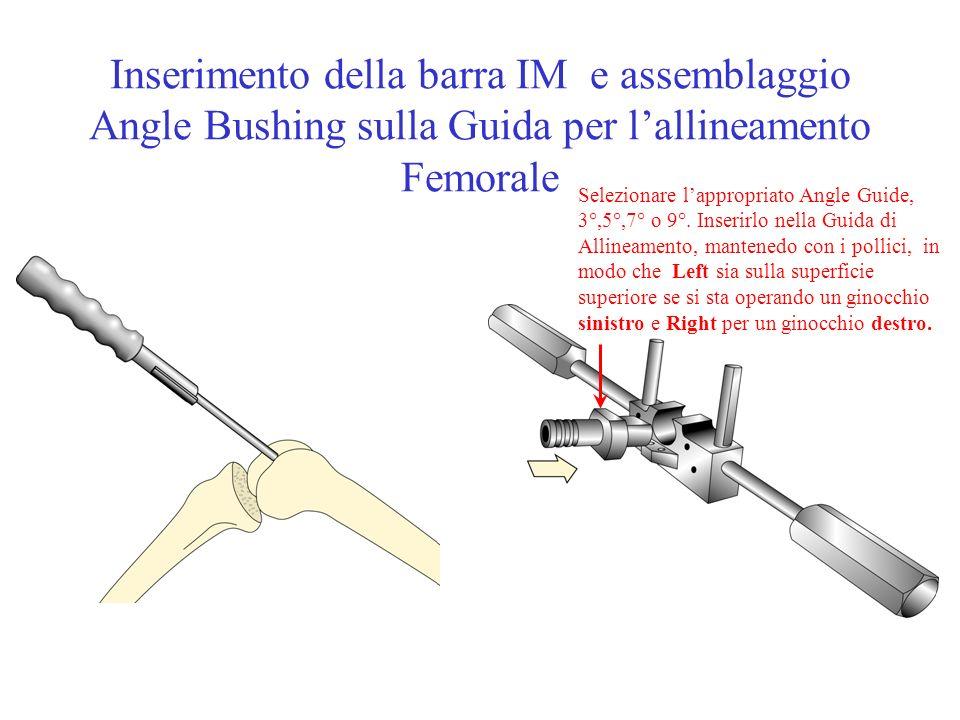 Inserimento della barra IM e assemblaggio Angle Bushing sulla Guida per lallineamento Femorale Selezionare lappropriato Angle Guide, 3°,5°,7° o 9°. In