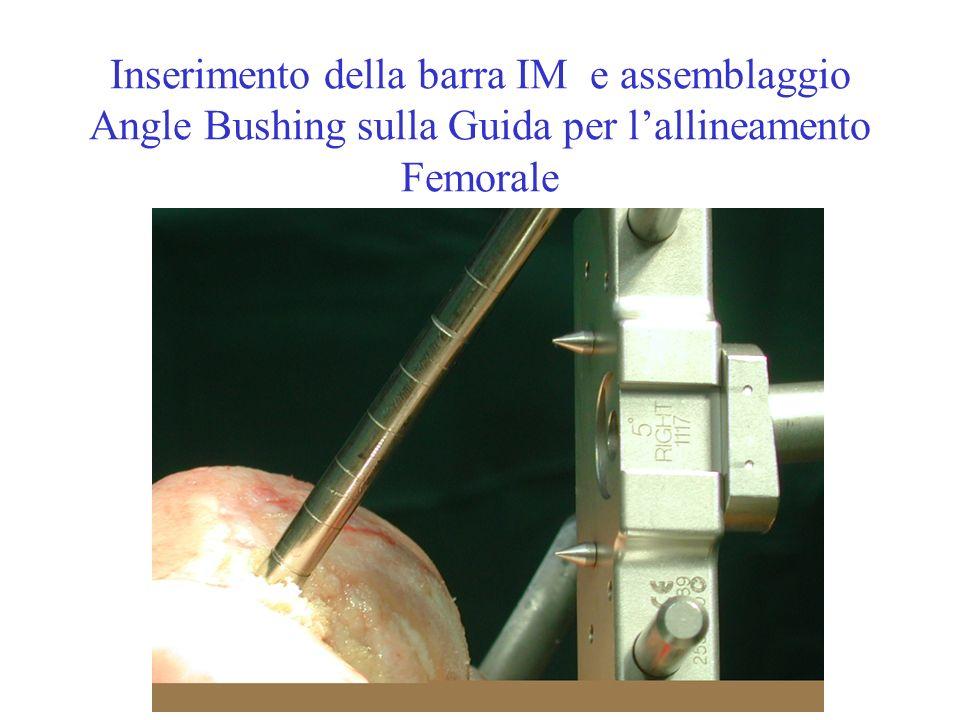 Inserimento della barra IM e assemblaggio Angle Bushing sulla Guida per lallineamento Femorale
