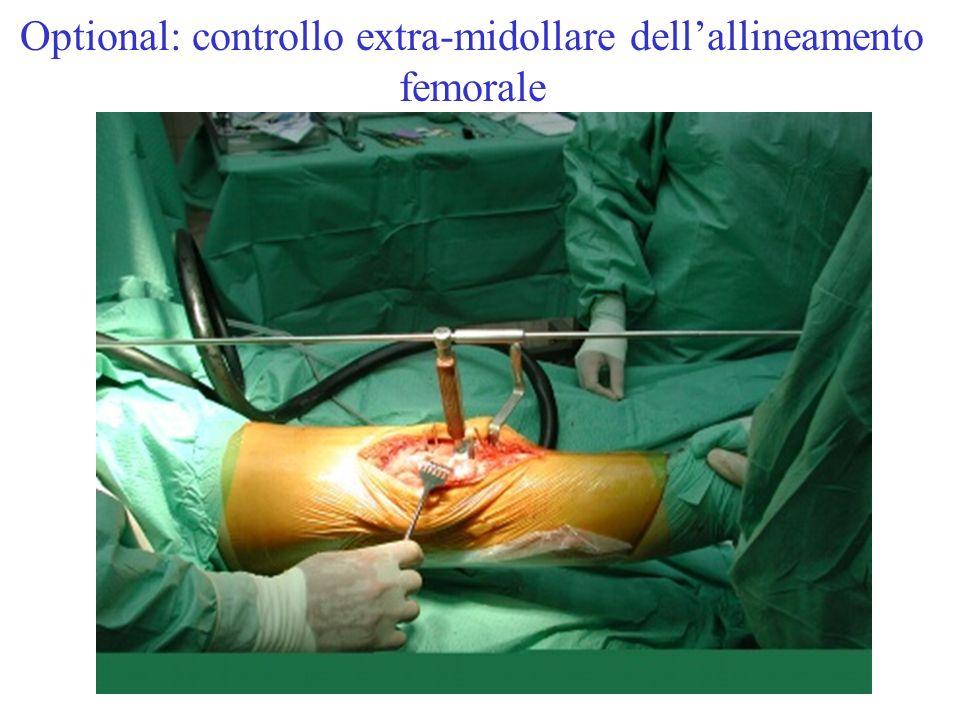 Optional: controllo extra-midollare dellallineamento femorale