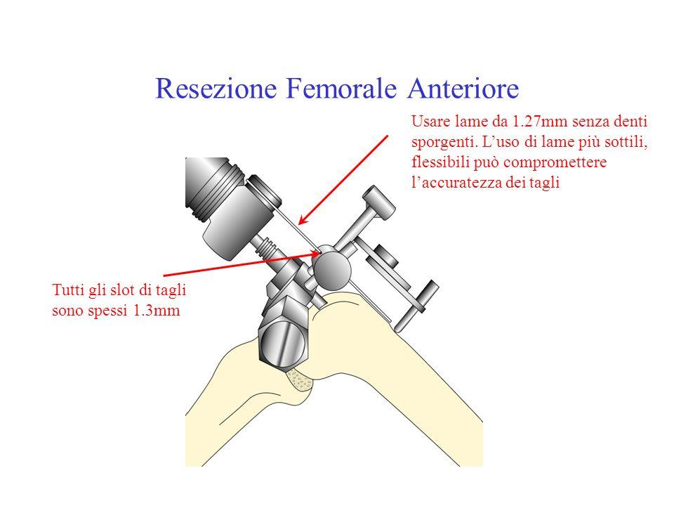 Resezione Femorale Anteriore Usare lame da 1.27mm senza denti sporgenti. Luso di lame più sottili, flessibili può compromettere laccuratezza dei tagli