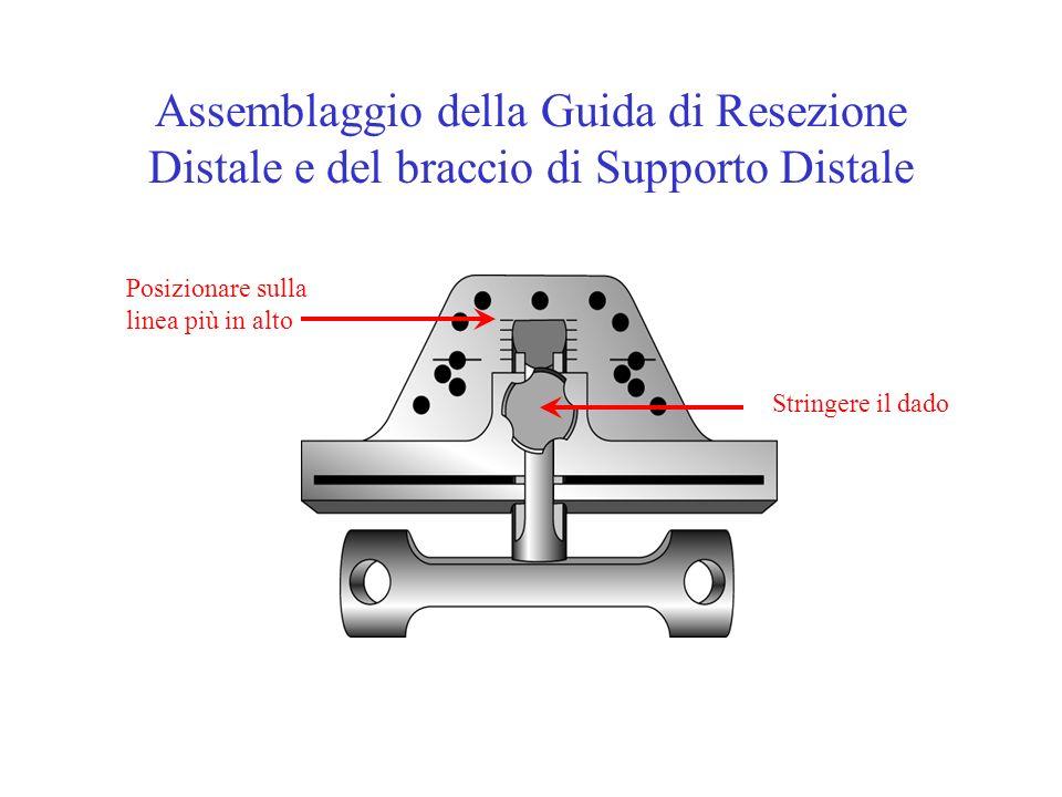 Assemblaggio della Guida di Resezione Distale e del braccio di Supporto Distale Posizionare sulla linea più in alto Stringere il dado