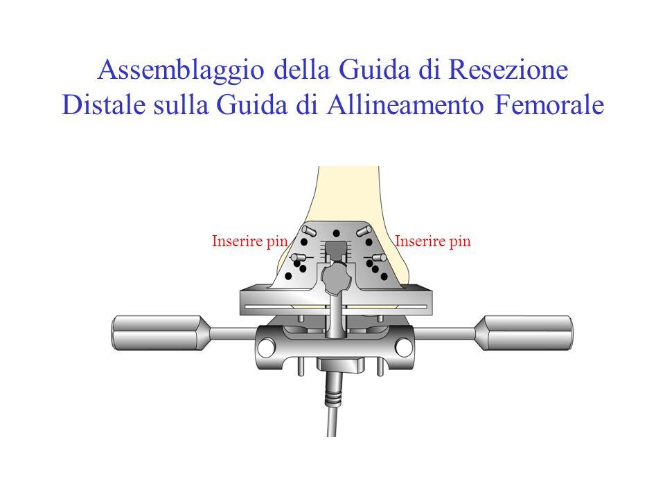 Assemblaggio della Guida di Resezione Distale sulla Guida di Allineamento Femorale Inserire pin