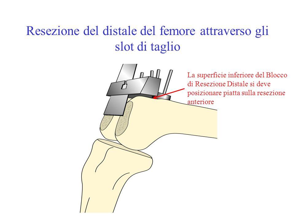 Resezione del distale del femore attraverso gli slot di taglio La superficie inferiore del Blocco di Resezione Distale si deve posizionare piatta sull