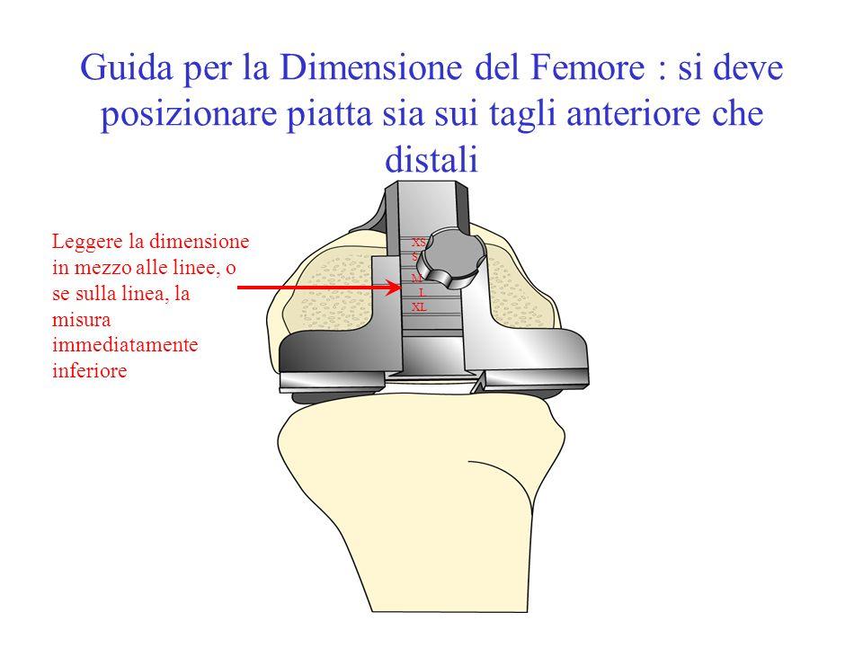 Guida per la Dimensione del Femore : si deve posizionare piatta sia sui tagli anteriore che distali Leggere la dimensione in mezzo alle linee, o se su