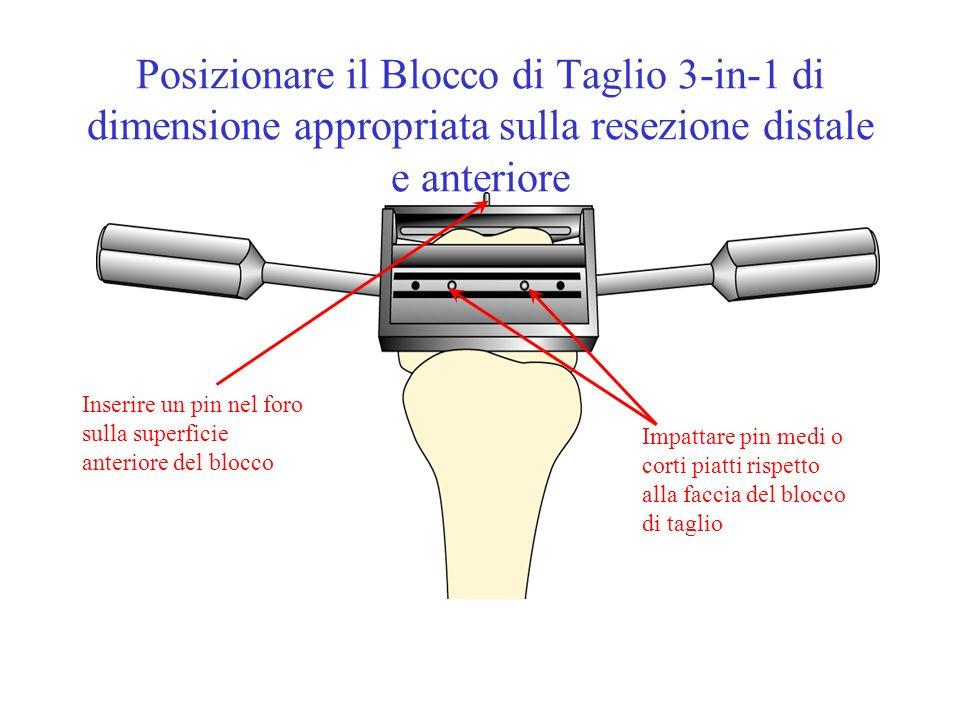 Posizionare il Blocco di Taglio 3-in-1 di dimensione appropriata sulla resezione distale e anteriore Impattare pin medi o corti piatti rispetto alla f