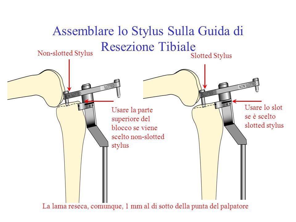 Assemblare lo Stylus Sulla Guida di Resezione Tibiale Non-slotted Stylus Slotted Stylus Usare la parte superiore del blocco se viene scelto non-slotte