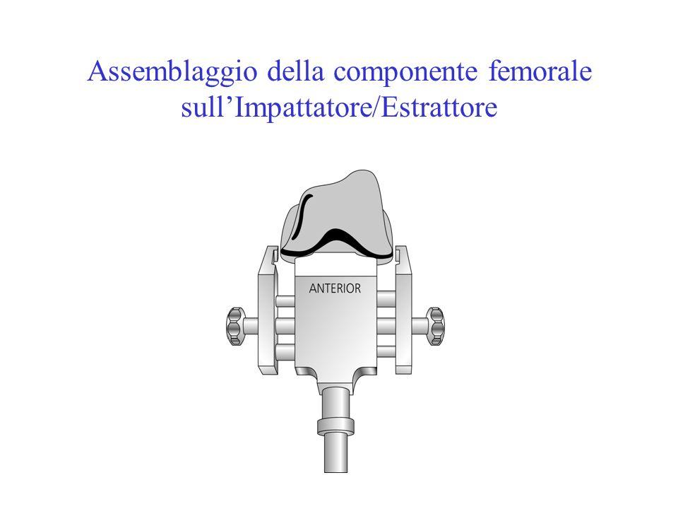 Assemblaggio della componente femorale sullImpattatore/Estrattore