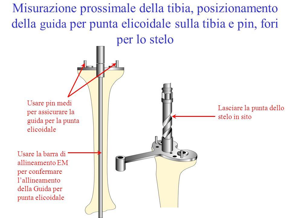 Misurazione prossimale della tibia, posizionamento della guida per punta elicoidale sulla tibia e pin, fori per lo stelo Lasciare la punta dello stelo