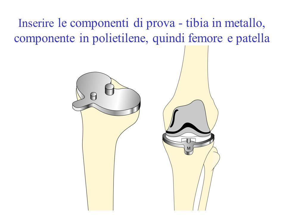 Inserire le componenti di prova - tibia in metallo, componente in polietilene, quindi femore e patella