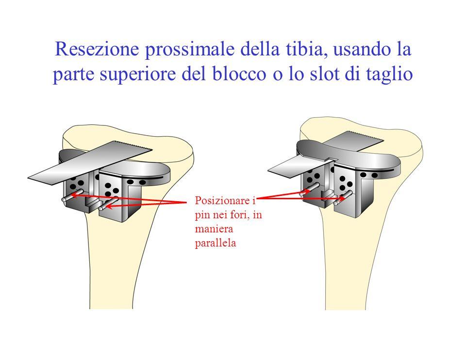 Resezione prossimale della tibia, usando la parte superiore del blocco o lo slot di taglio Posizionare i pin nei fori, in maniera parallela
