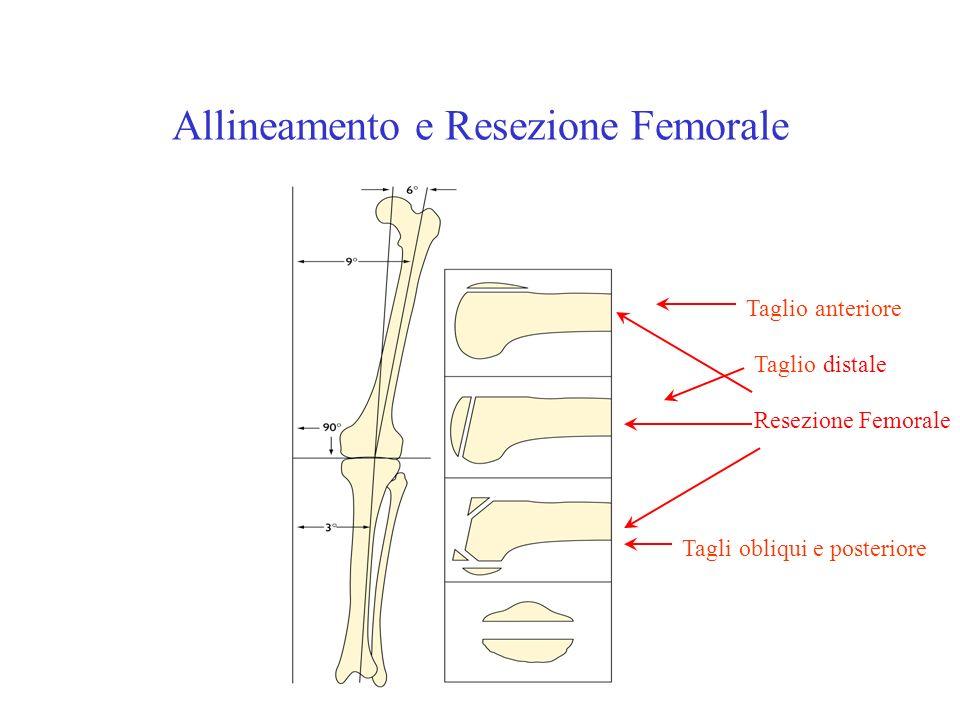 Allineamento e Resezione Femorale Resezione Femorale Taglio anteriore Taglio distale Tagli obliqui e posteriore