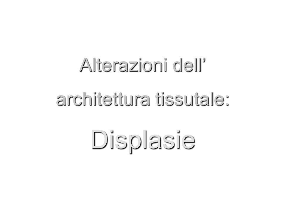Alterazioni dell architettura tissutale: Displasie