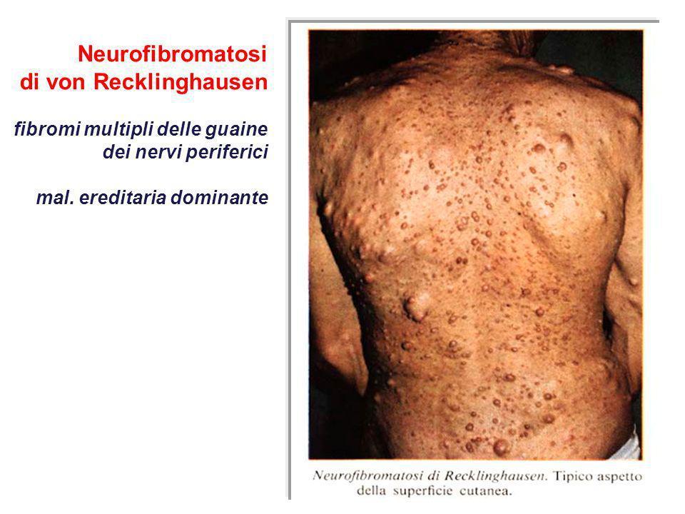 Neurofibromatosi di von Recklinghausen fibromi multipli delle guaine dei nervi periferici mal. ereditaria dominante