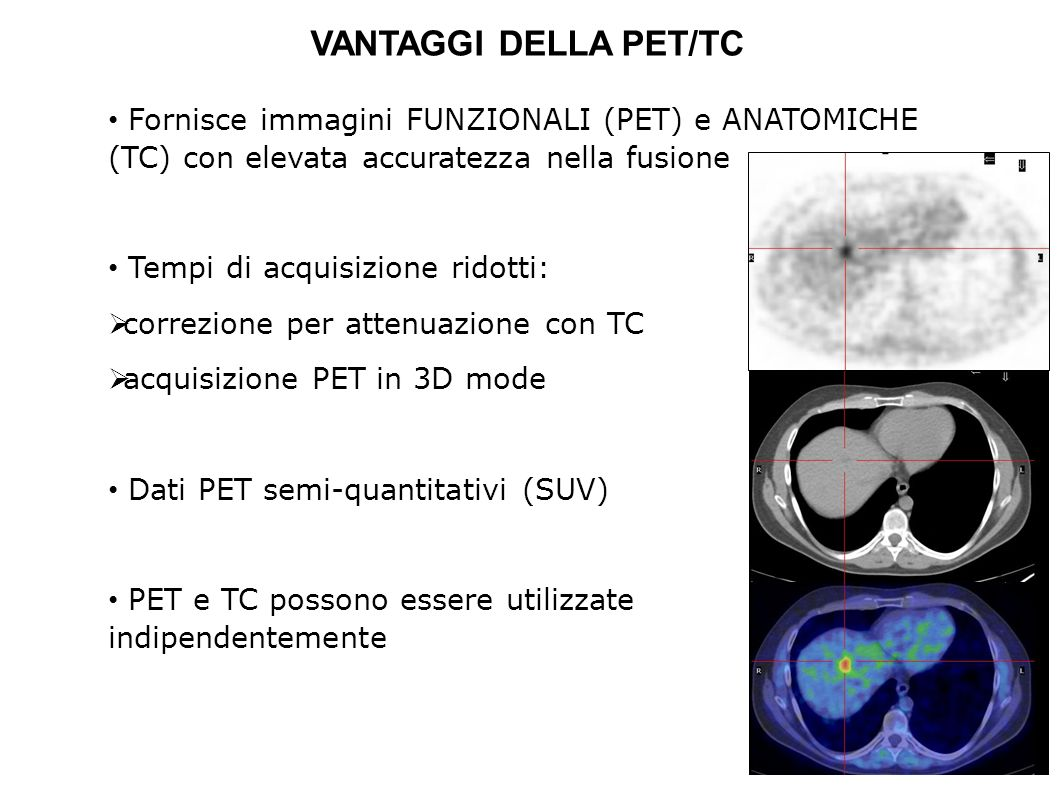 Fornisce immagini FUNZIONALI (PET) e ANATOMICHE (TC) con elevata accuratezza nella fusione Tempi di acquisizione ridotti: correzione per attenuazione