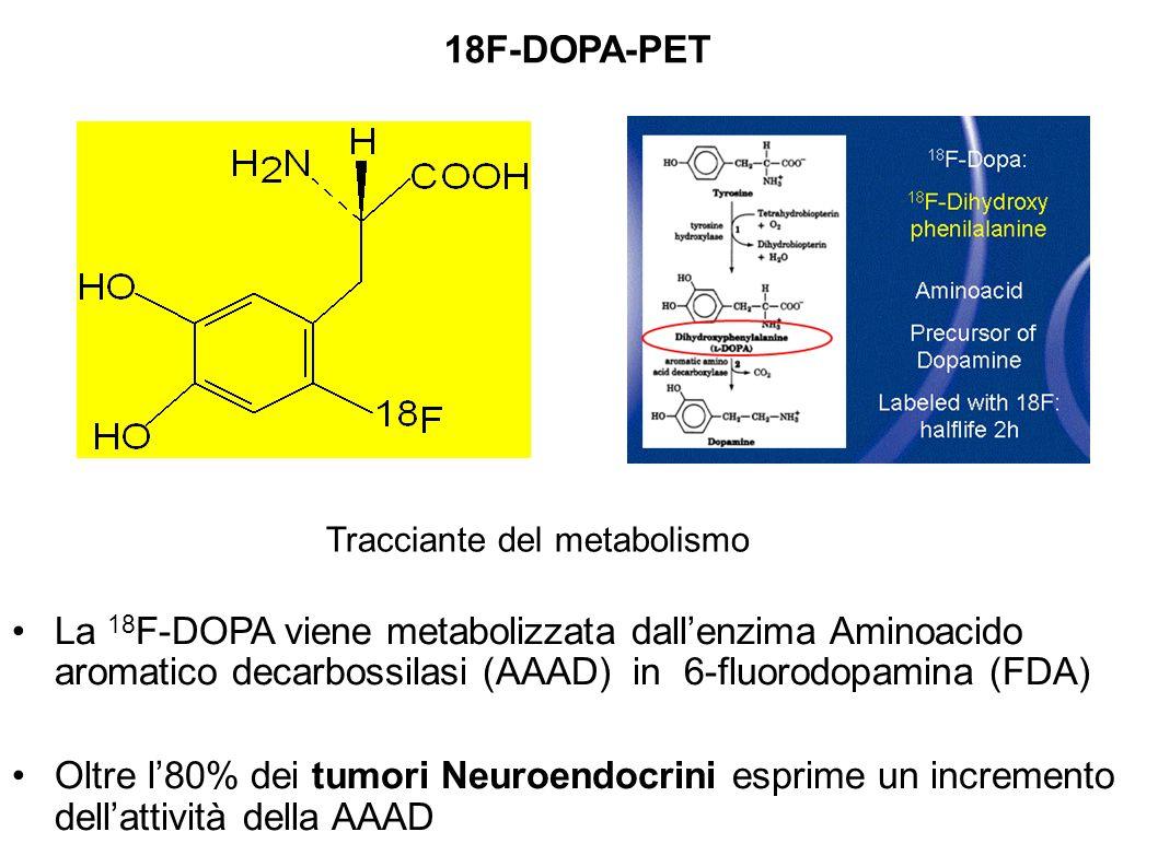 La 18 F-DOPA viene metabolizzata dallenzima Aminoacido aromatico decarbossilasi (AAAD) in 6-fluorodopamina (FDA) Oltre l80% dei tumori Neuroendocrini