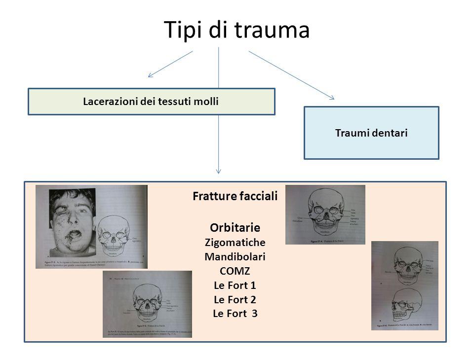 Tipi di trauma Lacerazione dei tessuti molli Lacerazioni dei tessuti molli Fratture facciali Orbitarie Zigomatiche Mandibolari COMZ Le Fort 1 Le Fort