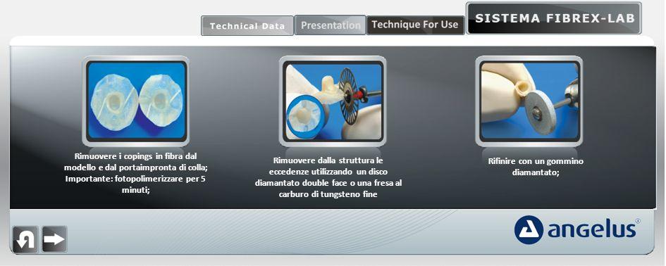 Rimuovere i copings in fibra dal modello e dal portaimpronta di colla; Importante: fotopolimerizzare per 5 minuti; Rimuovere dalla struttura le eccede