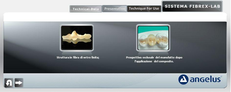 Struttura in fibra di vetro finita;Prospettiva occlusale del manufatto dopo lapplicazione del composito.