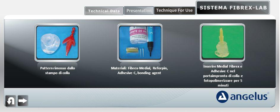 Pattern rimosso dallo stampo di colla Materiali: Fibrex-Medial, Reforpin, Adhesive C, bonding agent Inserire Medial Fibrex e Adhesive C nel portaimpronta di colla e fotopolimerizzare per 5 minuti