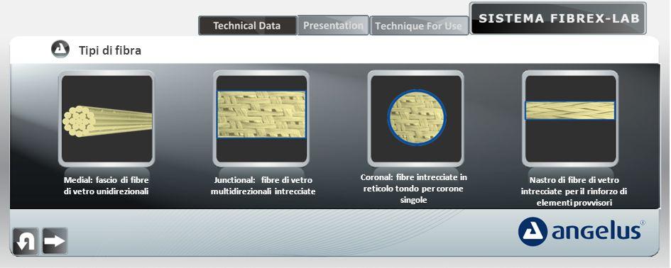 Medial: fascio di fibre di vetro unidirezionali Junctional: fibre di vetro multidirezionali intrecciate Coronal: fibre intrecciate in reticolo tondo per corone singole Nastro di fibre di vetro intrecciate per il rinforzo di elementi provvisori Tipi di fibra