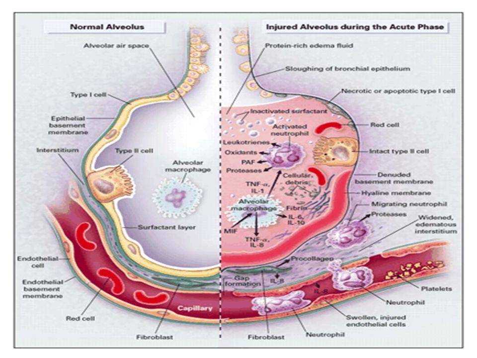 Prevenzione della ARF Idratazione Evitare sostanze nefrotossiche Mantenimento della pressione di perfusione (nello shock settico e in tutti i casi di vasodilatazione è consigliata la noradrenalina)