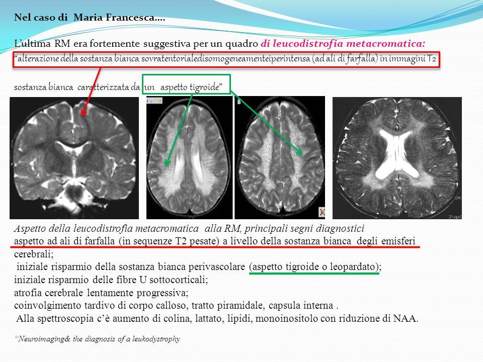 Nel caso di Maria Francesca…. Lultima RM era fortemente suggestiva per un quadro di leucodistrofia metacromatica: alterazione della sostanza bianca so