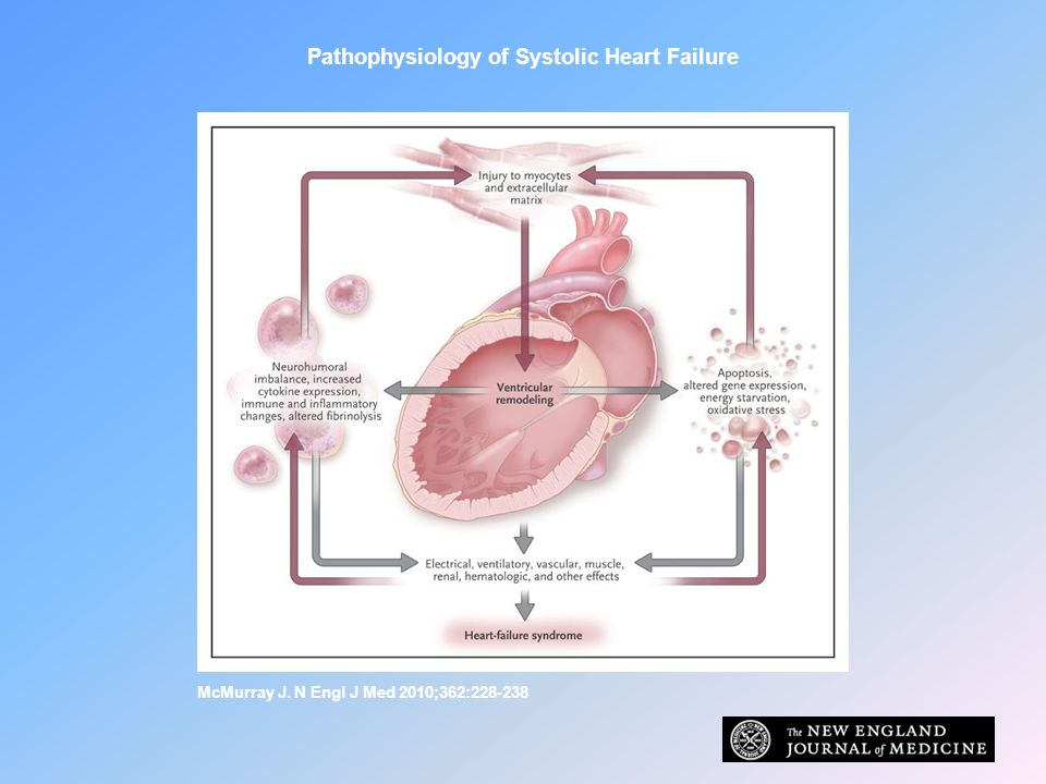 Pathophysiology of Systolic Heart Failure McMurray J. N Engl J Med 2010;362:228-238