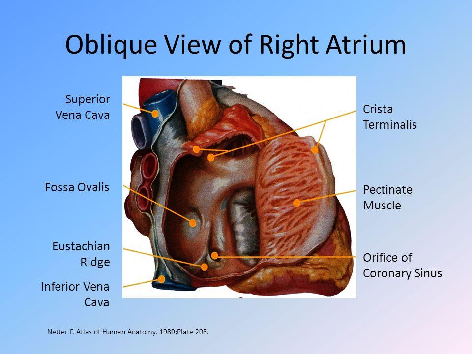 Oblique View of Right Atrium Crista Terminalis Pectinate Muscle Orifice of Coronary Sinus Superior Vena Cava Fossa Ovalis Eustachian Ridge Inferior Ve