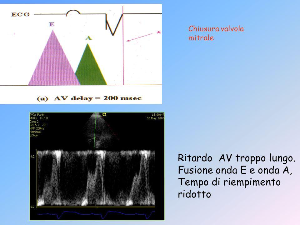 Chiusura valvola mitrale Ritardo AV troppo lungo. Fusione onda E e onda A, Tempo di riempimento ridotto