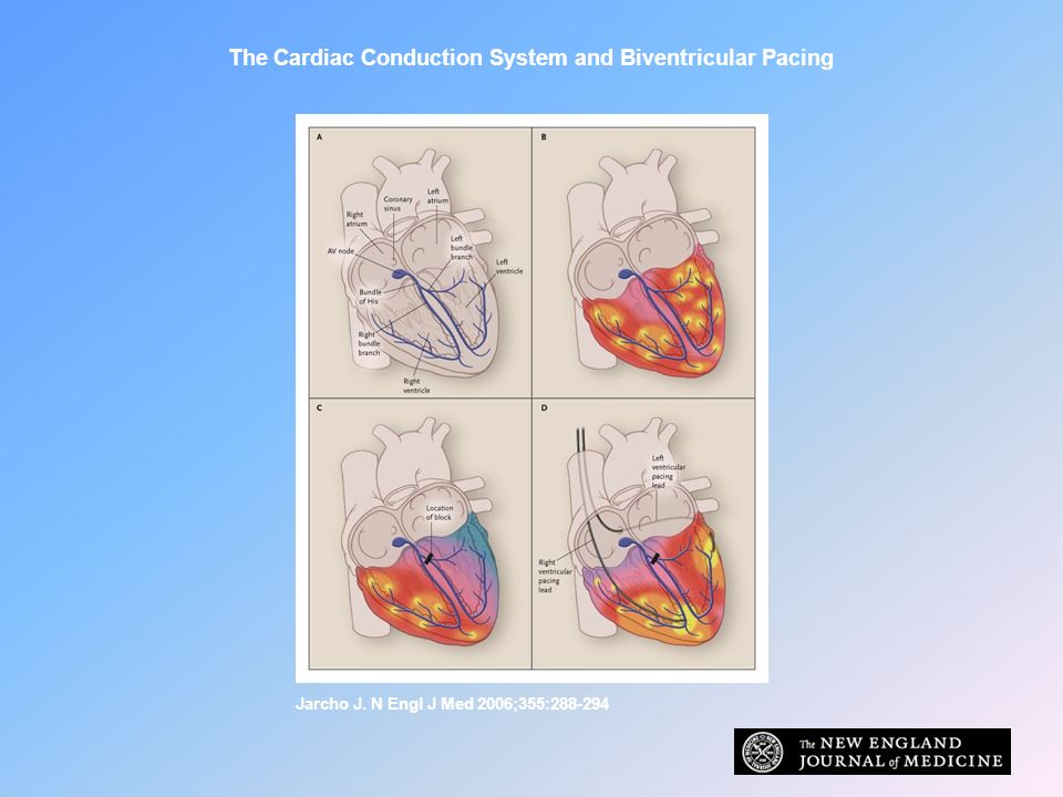 The Cardiac Conduction System and Biventricular Pacing Jarcho J. N Engl J Med 2006;355:288-294