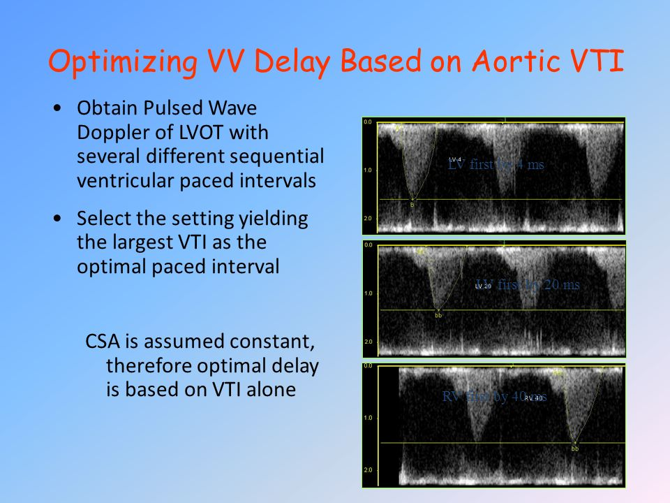 Optimizing VV Delay Based on Aortic VTI Obtain Pulsed Wave Doppler of LVOT with several different sequential ventricular paced intervals Select the se