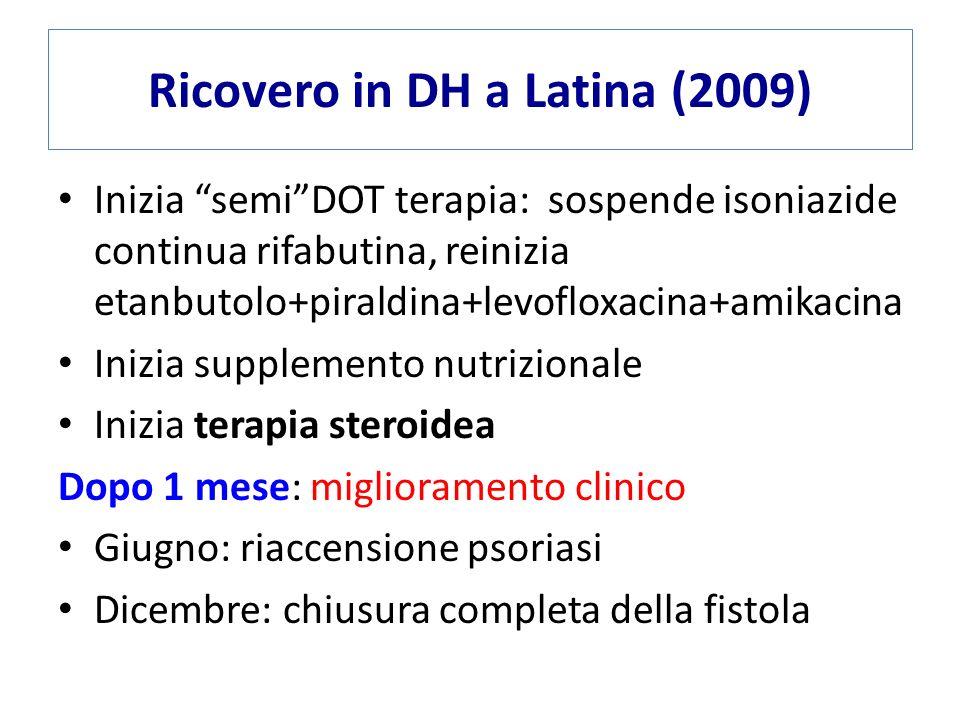 Ricovero in DH a Latina (2009) Inizia semiDOT terapia: sospende isoniazide continua rifabutina, reinizia etanbutolo+piraldina+levofloxacina+amikacina