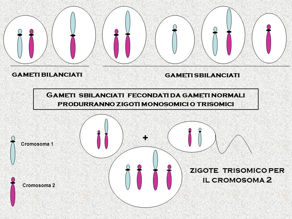 gameti bilanciati gameti sbilanciati Gameti sbilanciati fecondati da gameti normali produrranno zigoti monosomici o trisomici zigote trisomico per il