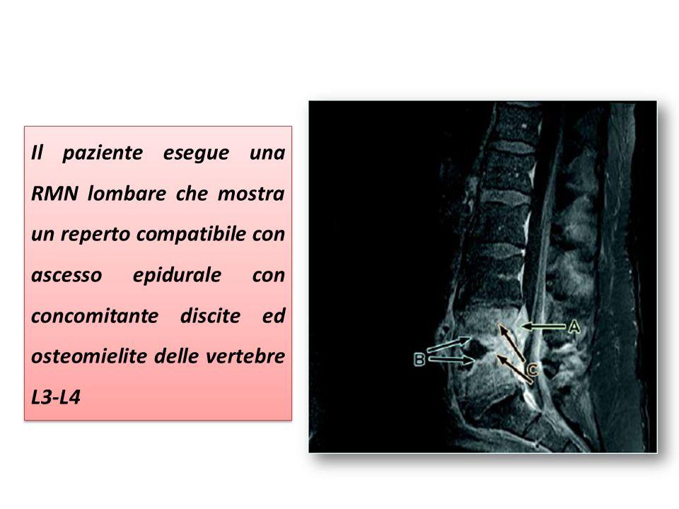 Il paziente esegue una RMN lombare che mostra un reperto compatibile con ascesso epidurale con concomitante discite ed osteomielite delle vertebre L3-