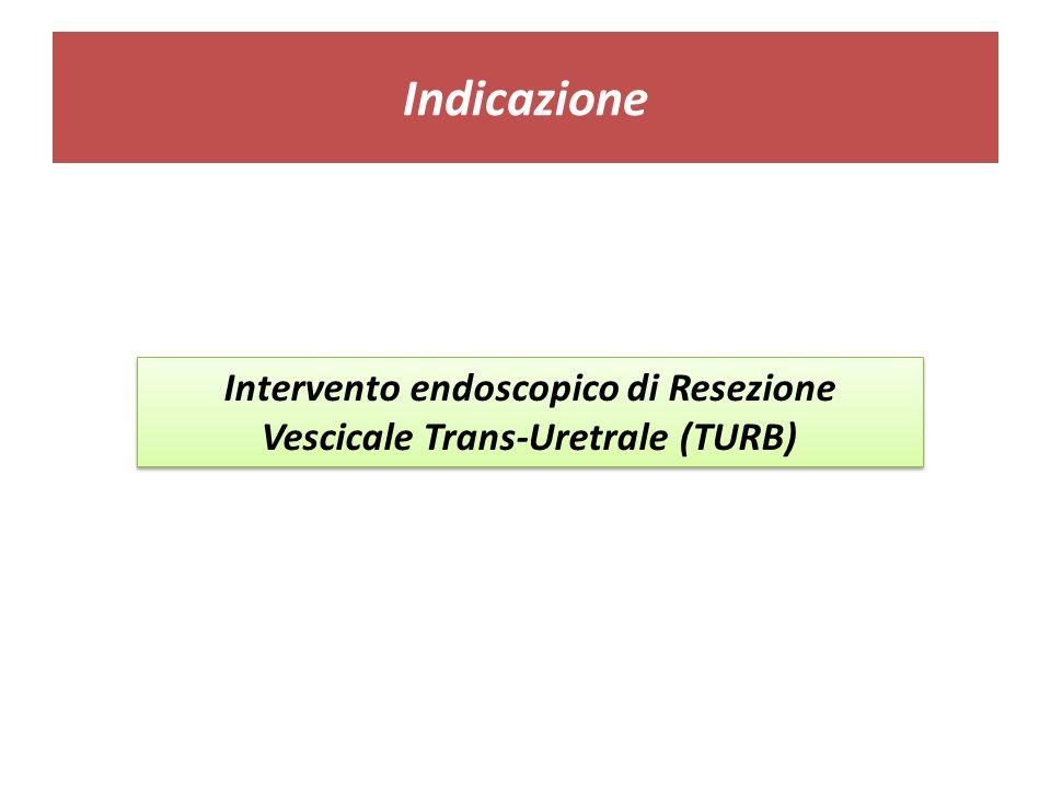 Indicazione Intervento endoscopico di Resezione Vescicale Trans-Uretrale (TURB)