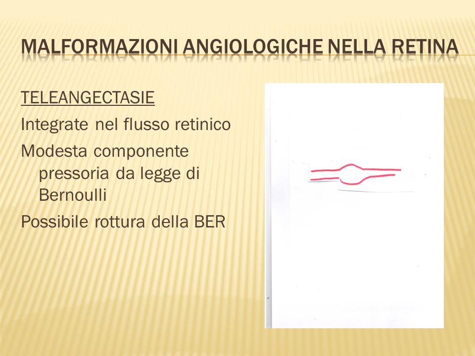 TELEANGECTASIE Integrate nel flusso retinico Modesta componente pressoria da legge di Bernoulli Possibile rottura della BER