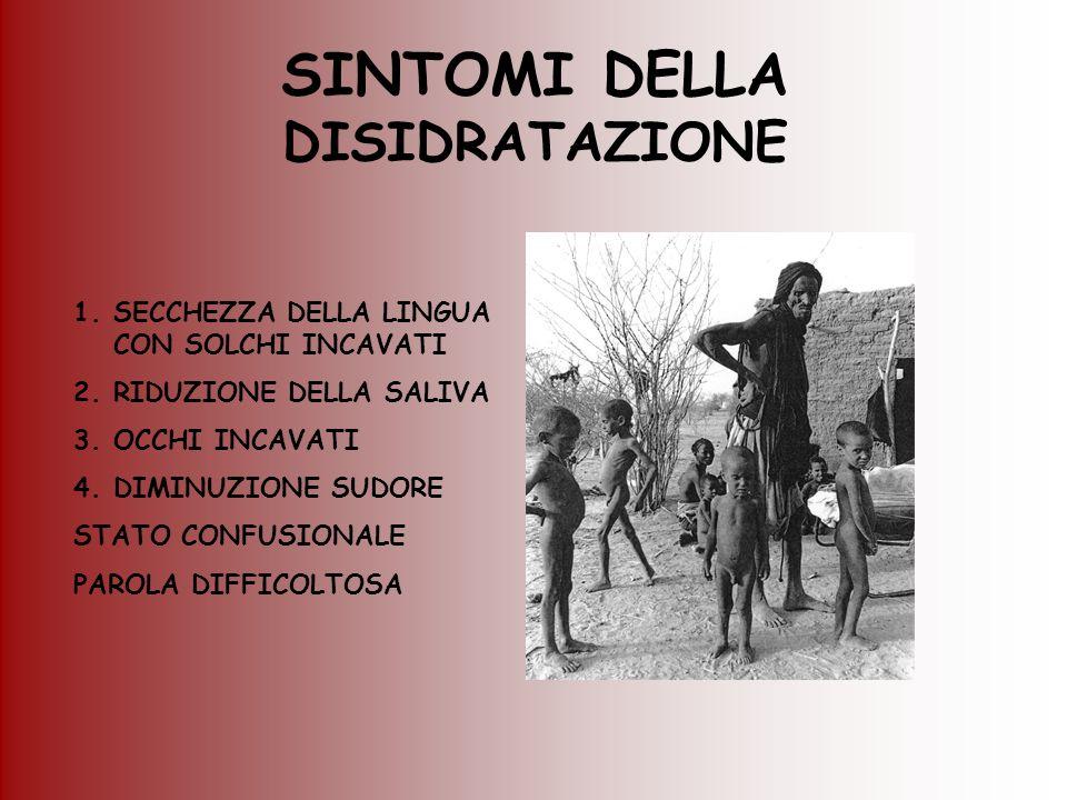 SINTOMI DELLA DISIDRATAZIONE 1.SECCHEZZA DELLA LINGUA CON SOLCHI INCAVATI 2.RIDUZIONE DELLA SALIVA 3.OCCHI INCAVATI 4.DIMINUZIONE SUDORE STATO CONFUSI