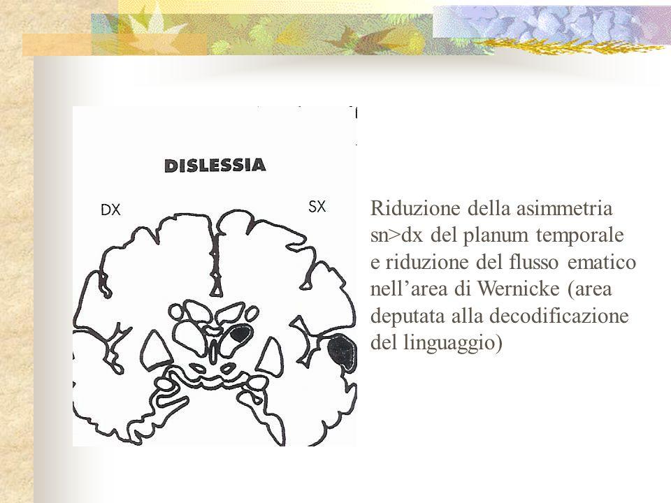 Riduzione della asimmetria sn>dx del planum temporale e riduzione del flusso ematico nellarea di Wernicke (area deputata alla decodificazione del linguaggio)
