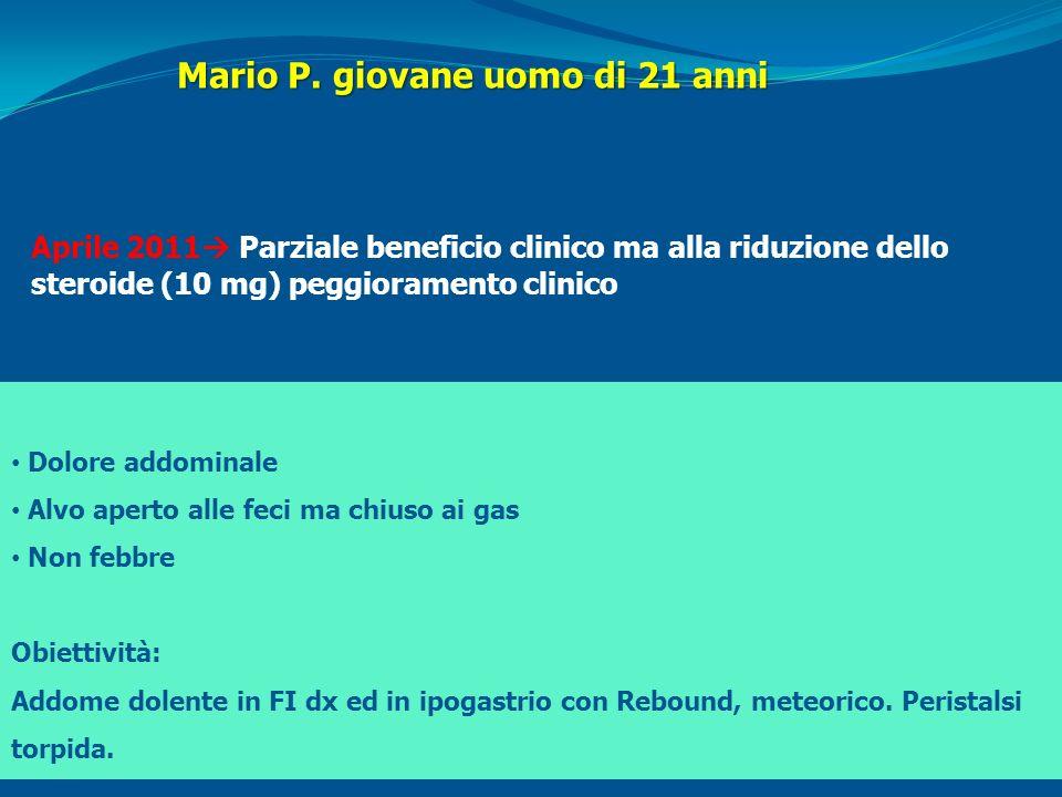 Mario P. giovane uomo di 21 anni Aprile 2011 Parziale beneficio clinico ma alla riduzione dello steroide (10 mg) peggioramento clinico Dolore addomina