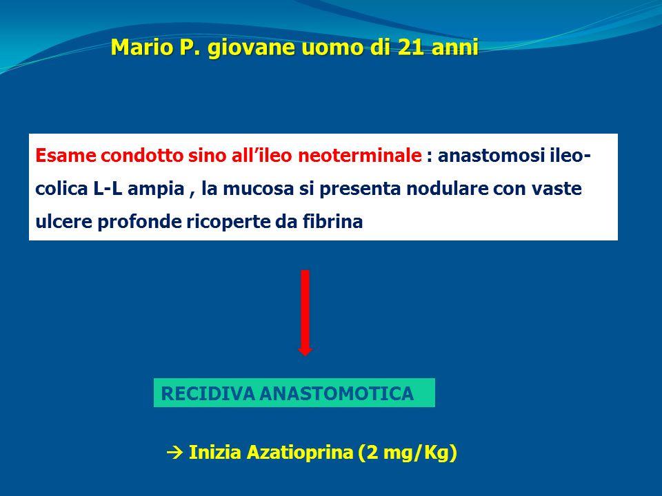 Esame condotto sino allileo neoterminale : anastomosi ileo- colica L-L ampia, la mucosa si presenta nodulare con vaste ulcere profonde ricoperte da fi