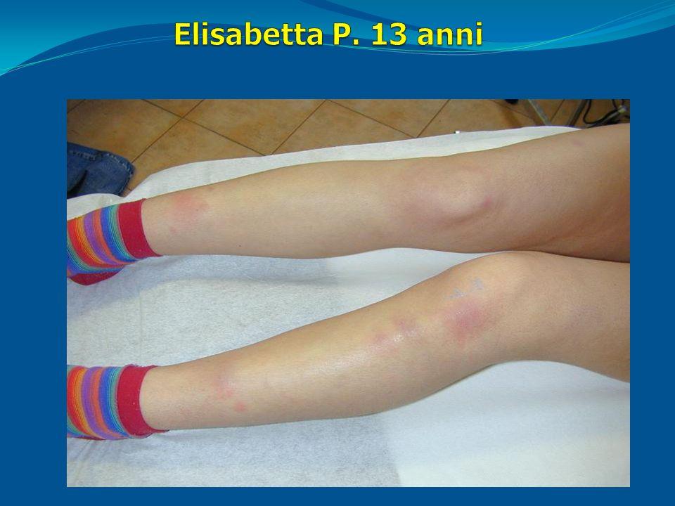 Esami bioumorali: Hb 10 g/dl Ferritina 6 ng/dl VES 40 mm/h PCR 5 mg/dl albumina 2,7 g/dl Calprotectina fecale > 250 Screening sierologico per celiachia ed EGDS negativi