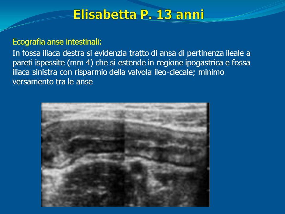 Ecografia anse intestinali: In fossa iliaca destra si evidenzia tratto di ansa di pertinenza ileale a pareti ispessite (mm 4) che si estende in region