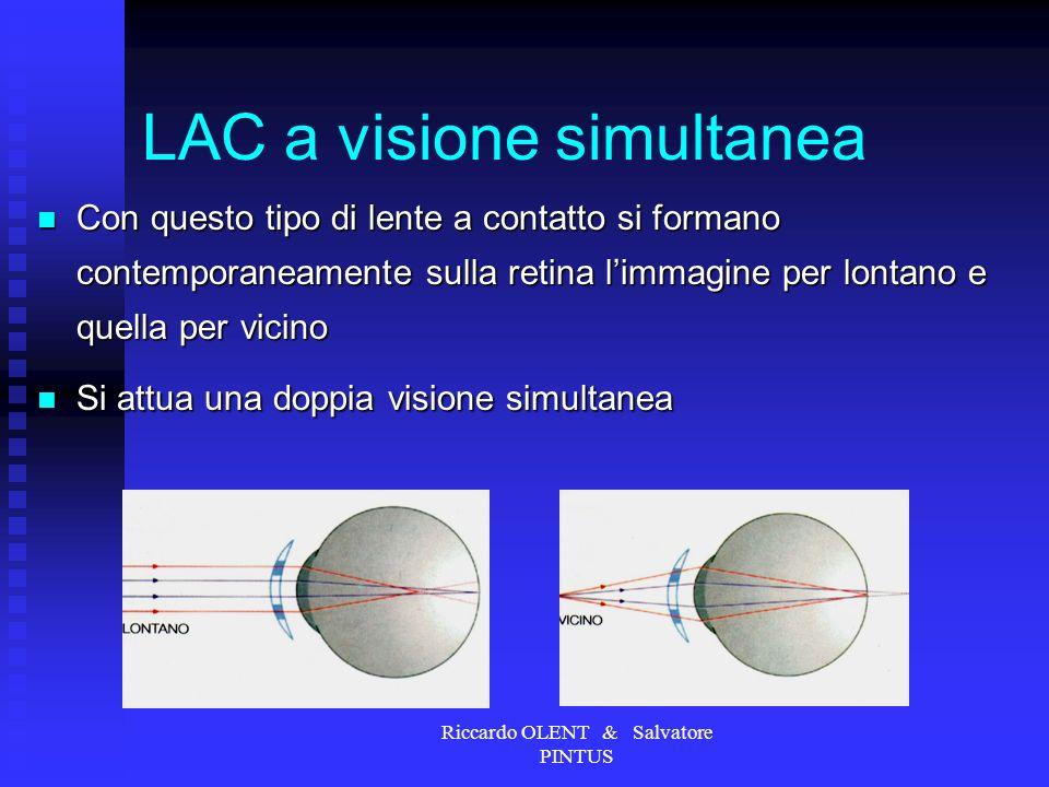Riccardo OLENT & Salvatore PINTUS LAC a visione simultanea Con questo tipo di lente a contatto si formano contemporaneamente sulla retina limmagine pe