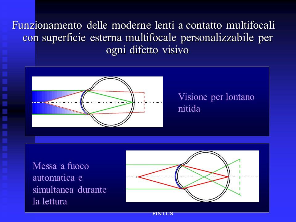 Riccardo OLENT & Salvatore PINTUS Funzionamento delle moderne lenti a contatto multifocali con superficie esterna multifocale personalizzabile per ogn