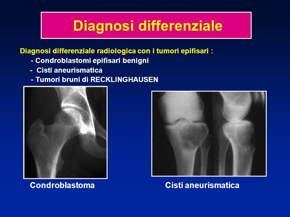 Diagnosi differenziale radiologica con i tumori epifisari : - Condroblastomi epifisari benigni - Cisti aneurismatica - Tumori bruni di RECKLINGHAUSEN