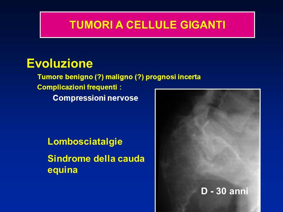 Evoluzione Tumore benigno (?) maligno (?) prognosi incerta Complicazioni frequenti : Compressioni nervose Lombosciatalgie Sindrome della cauda equina D - 30 anni TUMORI A CELLULE GIGANTI