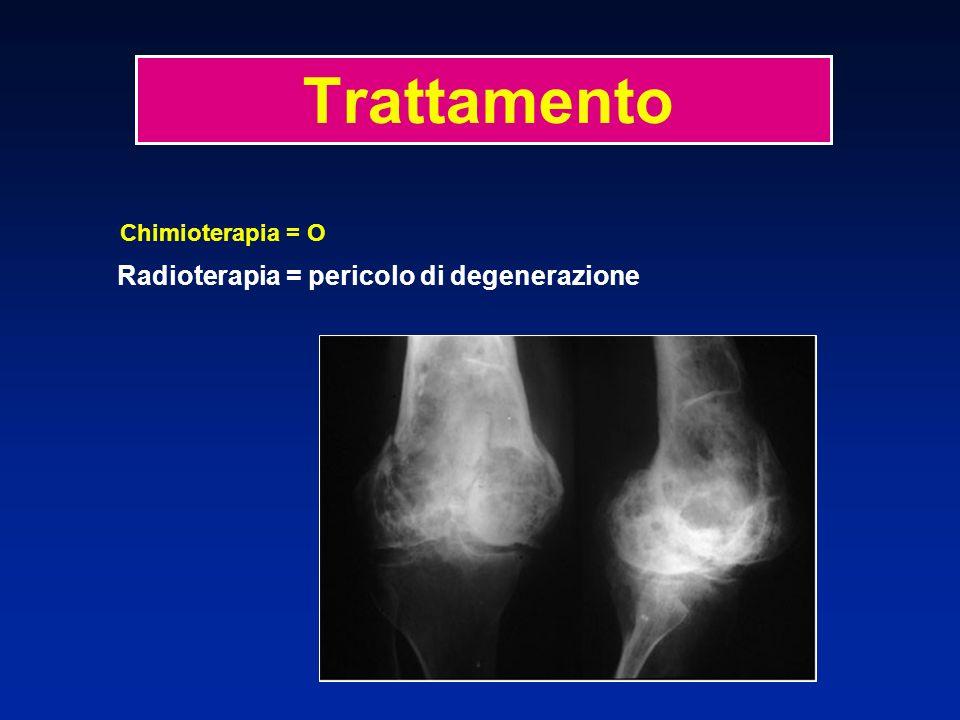 Chimioterapia = O Radioterapia = pericolo di degenerazione Trattamento